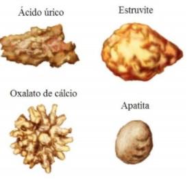 Tipos de cálculo renal - Sanar